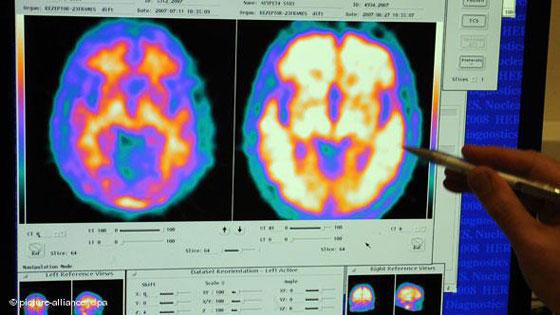 Snimke mozga - zdravog i oboljelog od Alzheimera