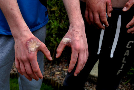 Painful blistering on this teenage boy caused by giant hogweed. INPT28-214.