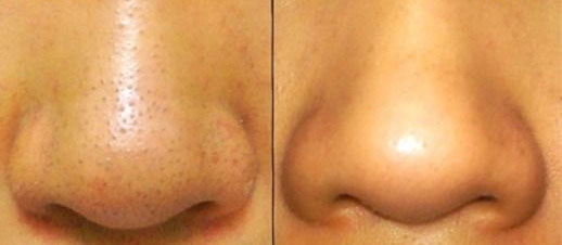 DIY-Blackhead-Remover-Original-Before-and-After-Picture