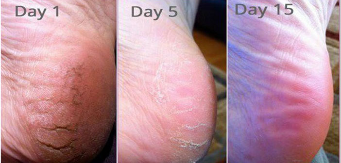 Ima 57 godina, a stopala poput djevojke: Recept protiv tvrdih naslaga na stopalima!