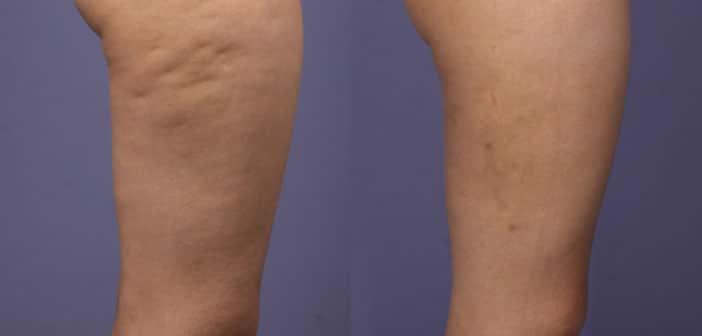 Riješite se celulita bez skupih krema i tretmana: Domaći anticelulitni losion - rezultat za 30 dana!