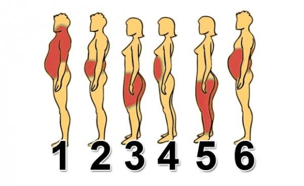 Gojaznost-1-e1436994142952-600x368 (1)