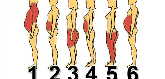 Od čega dolazi VAŠ problem s težinom i što točno napraviti: Pronađite svoj tip na ovoj mapi!