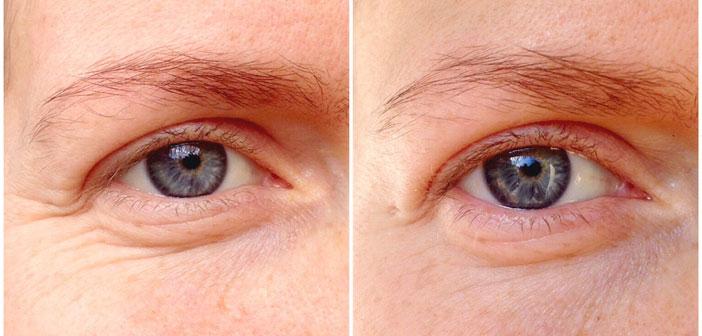 Najbolje domaće sredstvo protiv bora oko očiju - Recept