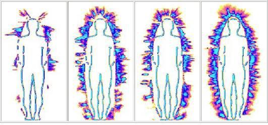 Primjeri aure, bioenergetskog zaštitnog omotača oko ljudskog tijela, kod nekoliko ispitanika.