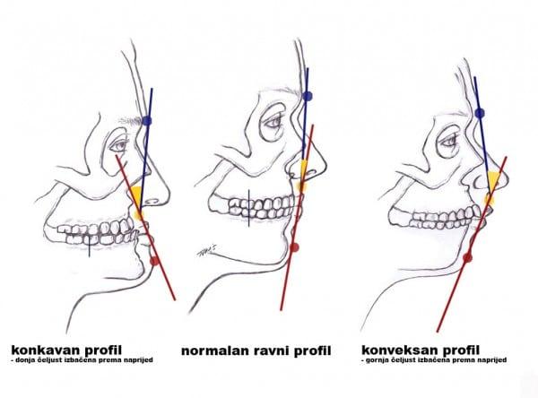 međusobni-odnosi-čeljusti-i-njihov-utjecaj-na-proporcije-lica-konkavni-ravni-i-konveksni-profil-e1317724192237 (1)