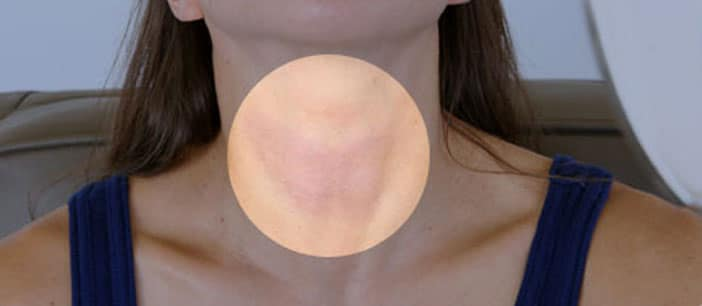 thyroid-symptoms-and-solutions-s13