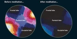 calming-mind-brain-waves