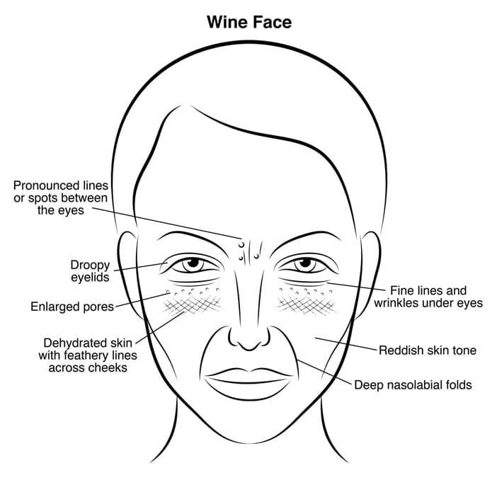 prepoznajte  u0161to vas uni u0161tava po izgledu lica  imate li
