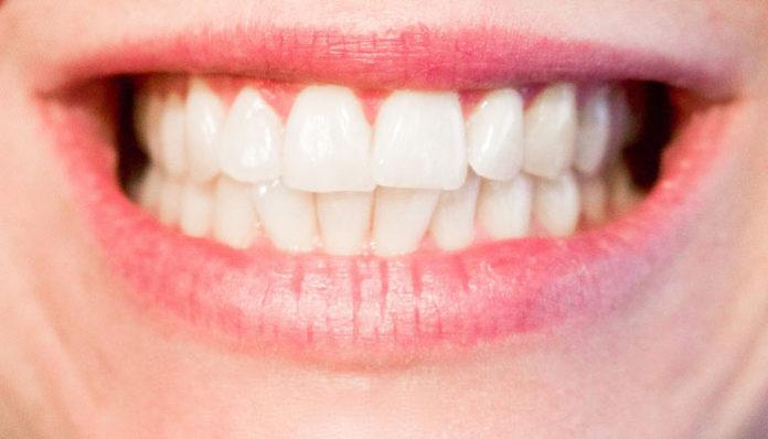 Lasersko izbeljivanje zuba podgorica
