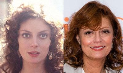 Susan Sarandon Plastic Surgery Before and After