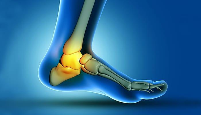 Kako se osloboditi čukljeva na nogama i riješiti se bolova u zglobovima