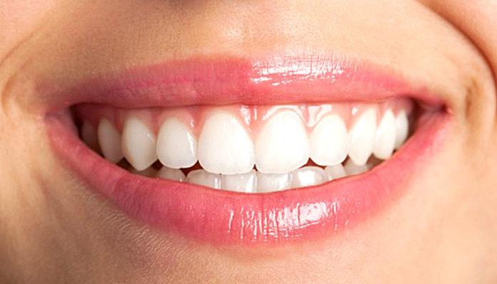 Izbjeljivanje zubi lampom iskustva