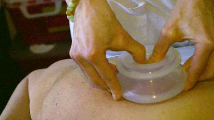 Cupping Therapy u SPLITU !!!