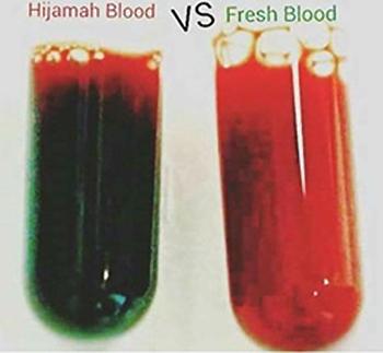 hidzama krv